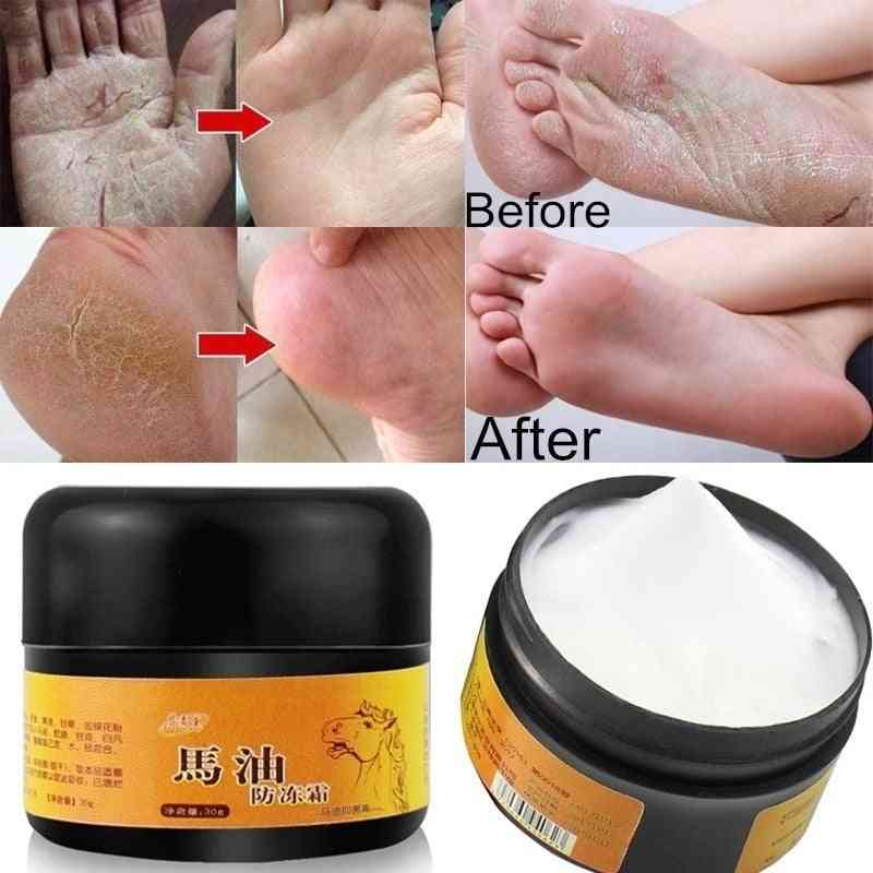 Foot, Hand Antifreeze Horse Oil Dry Cream Repair Anti Chapping Wrinkle Treatment Ointment