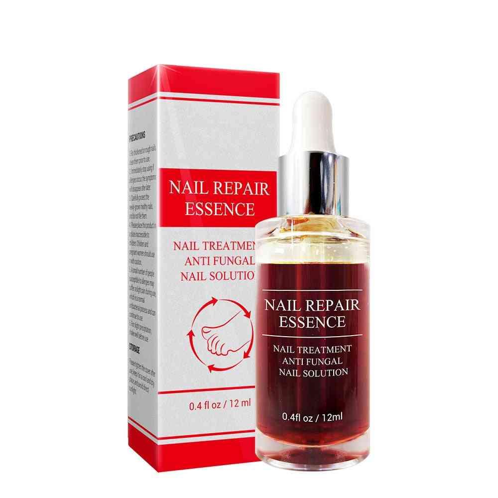 Herbal Nail Fungus Treatment Cream And Tools Repair Skin Care Cream Remedy For Foot Nail Care Tools