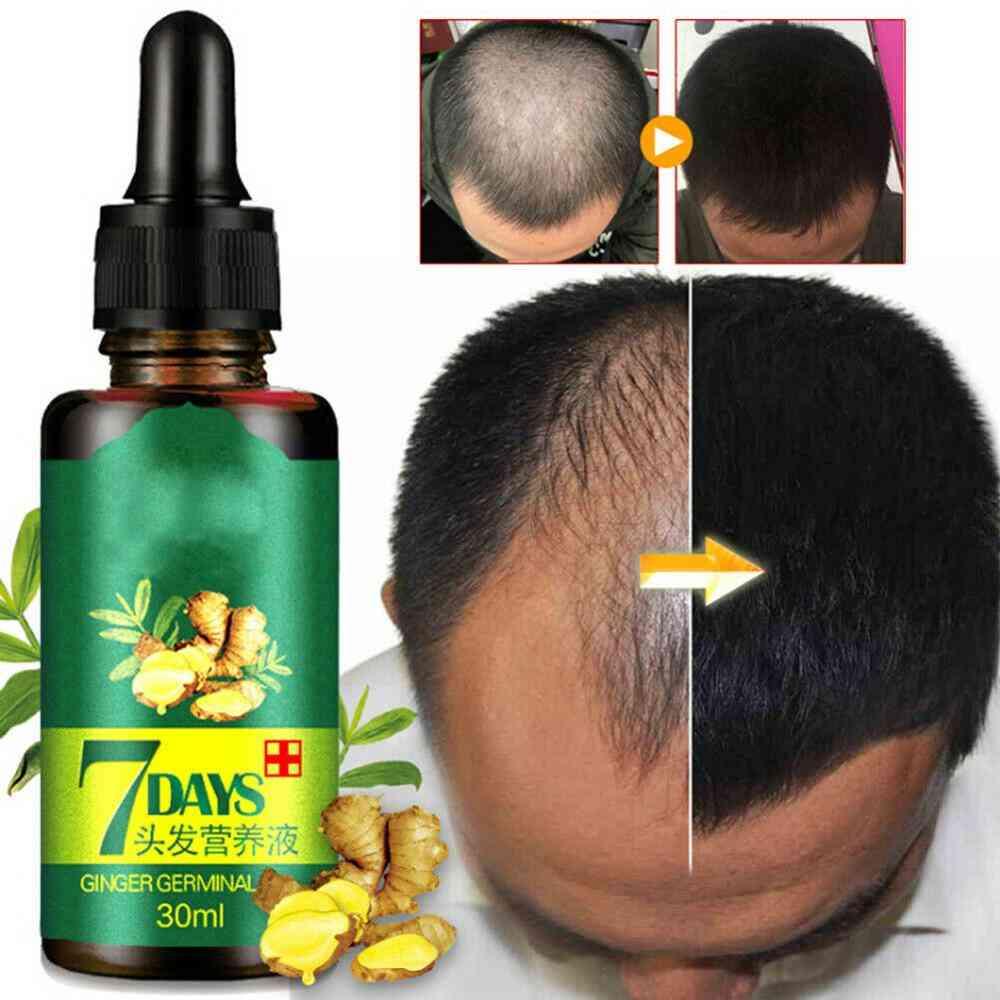 Ginger Hair Growth Essence - Germinal Hair Growth Serum Essence Oil
