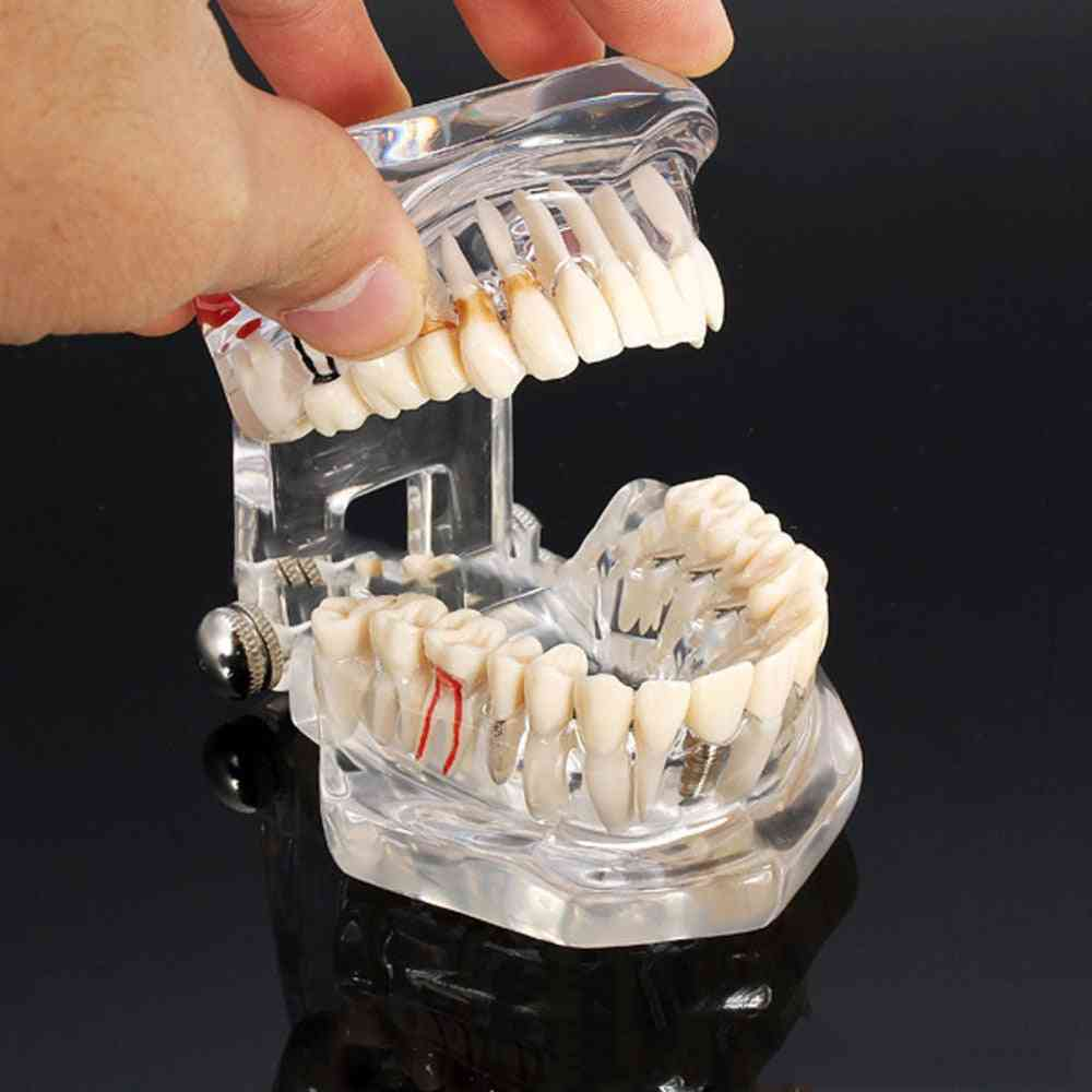 Flexibly And Detachable-dental Disease Teeth Implantation Model