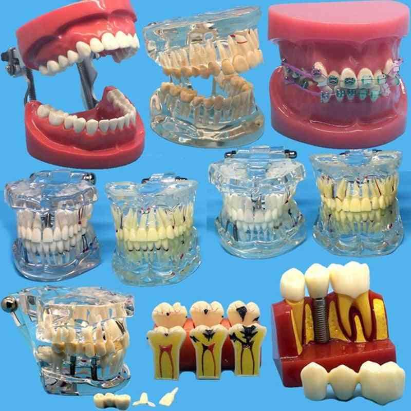 Various Dental Teeth Models For Teaching