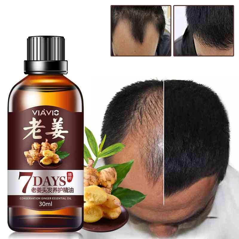 30ml Effective Hair Growth Ointment- Hair Care Healthy Growth Essence Oil For Hair Loss Care Growth