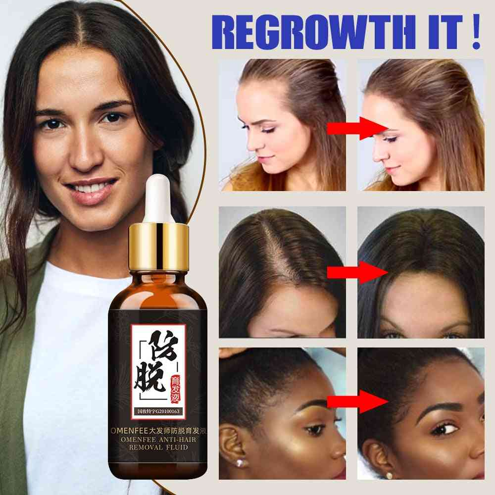 Fast Hair Growth Treatment - Hair Essence Oil Natural Extracts Liquid For Hair Care Regrowth