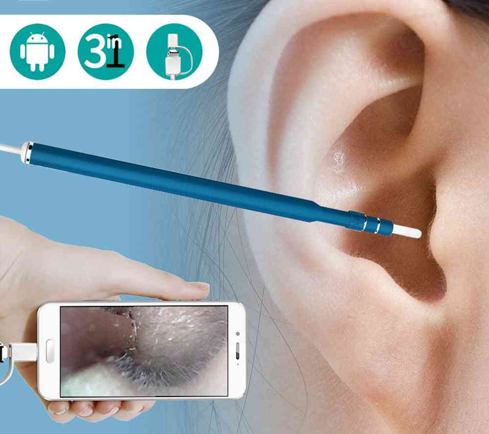 Hd Visual Ear Cleaning - Mini Camera Otoscope For Android