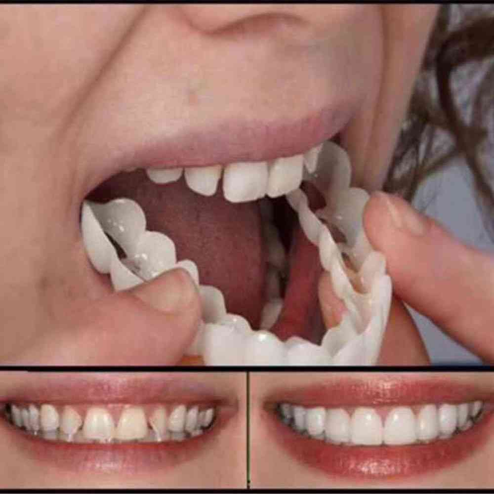 Silicone Fake Teeth Upper False, Tooth Cover, Smile Cover Denture Oral Care, Plastic Whitening