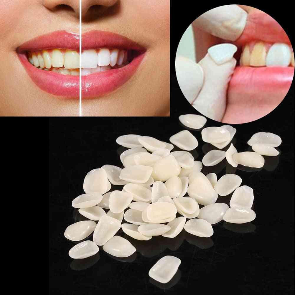 Dental Ultrathin Composite Resin Veneers Upper Anterior Teeth Restorative