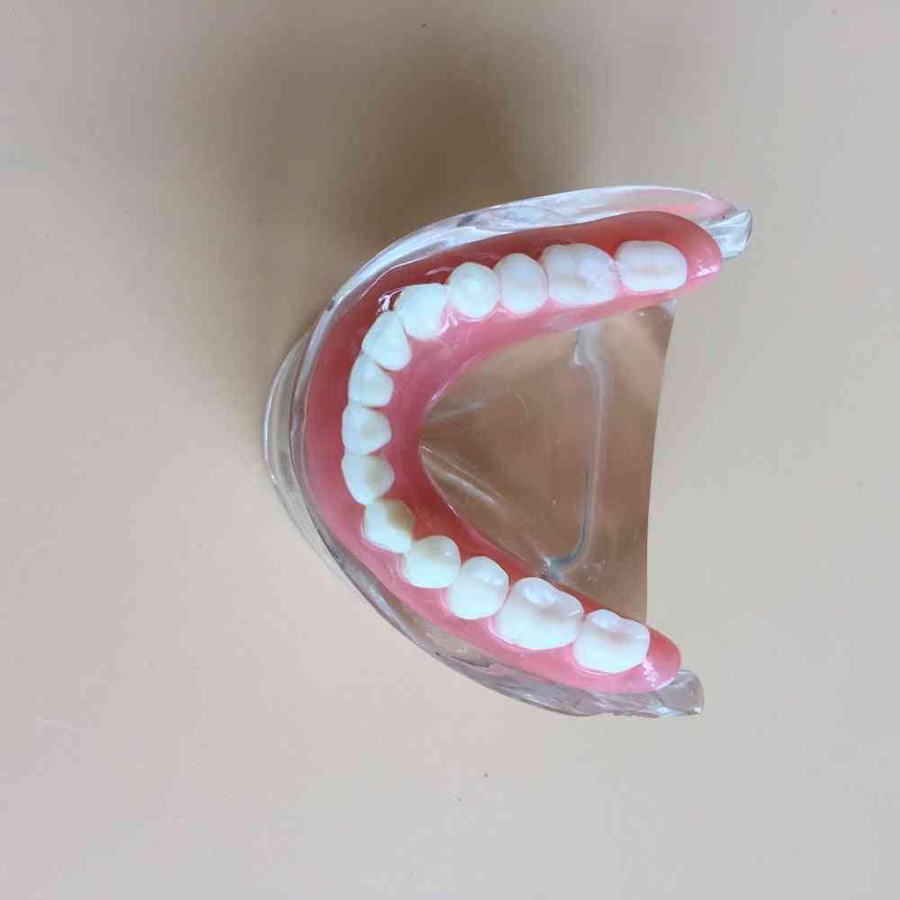 Removable Interior Mandibular Dental Teeth