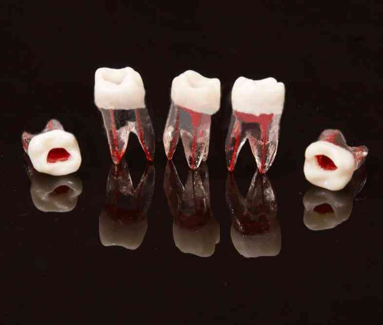 Dental Tooth Root Canal Model For Rct Practice Pulp Dentistry Lab Model Dental Material