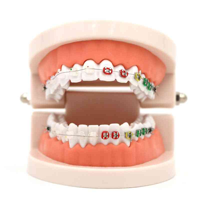 Dental Orthodontic Treatment Model With Ortho Metal Ceramic Bracket Arch Wire Buccal