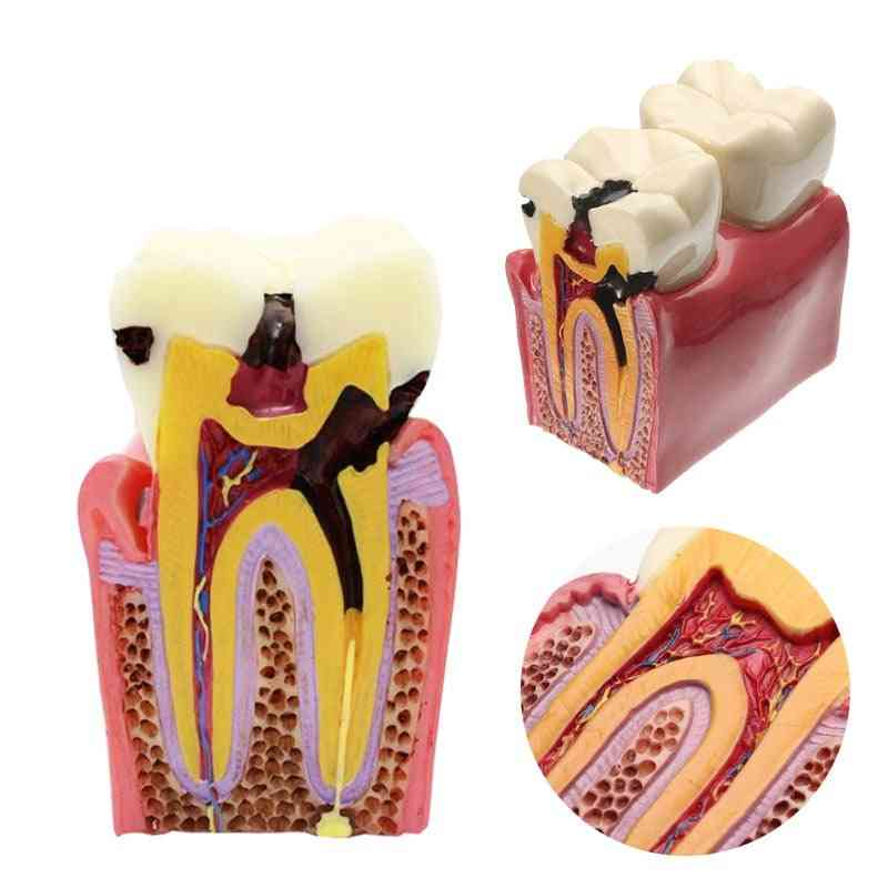Dental Teeth Model, Caries Comparation, Study Denture Tooth Models, Dentist Studying And Researching, Dentistry Product