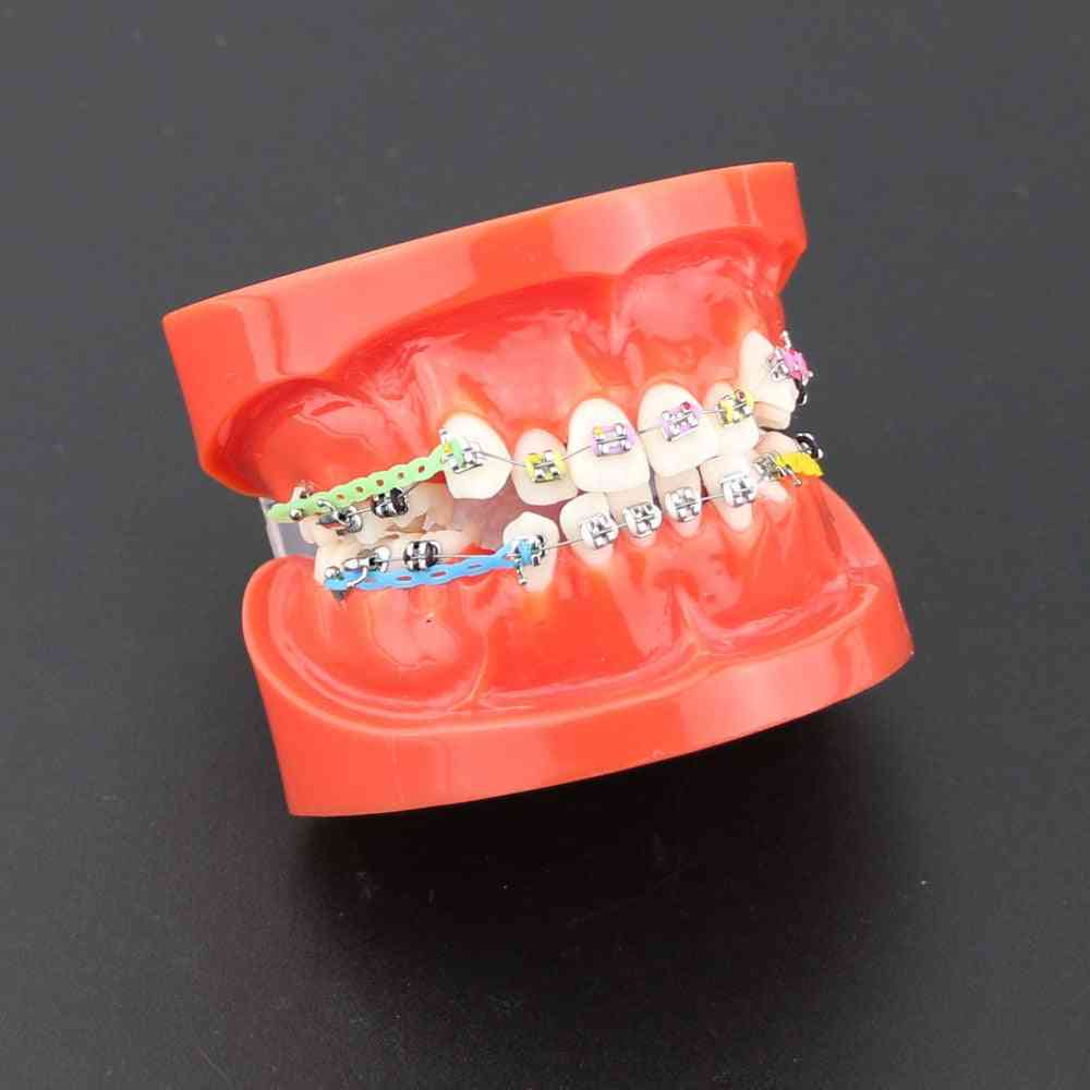 Dental Orthodontic Treatment Malocclusion Model With Ceramic Brackets
